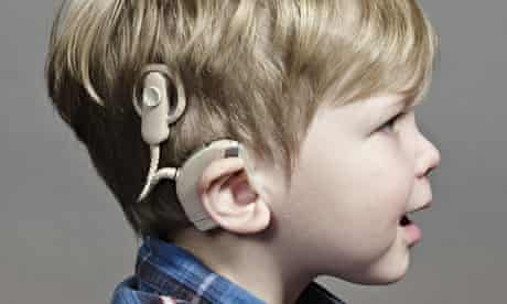 Oliver Campbell, who has bilateral cochlear implants.