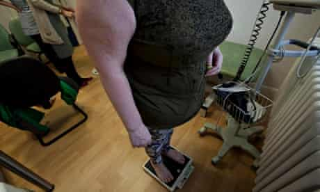 Excess weight blamed for eighth of hospital admissions in women over 50