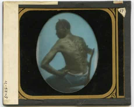 """A hand coloured glass slide copy of a carte de visite from 1863 """"The Scourged Back"""", by McPherson and Oliver (New Orleans)."""
