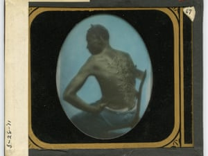 "A hand coloured glass slide copy of a carte de visite from 1863 ""The Scourged Back"", by McPherson and Oliver (New Orleans)."