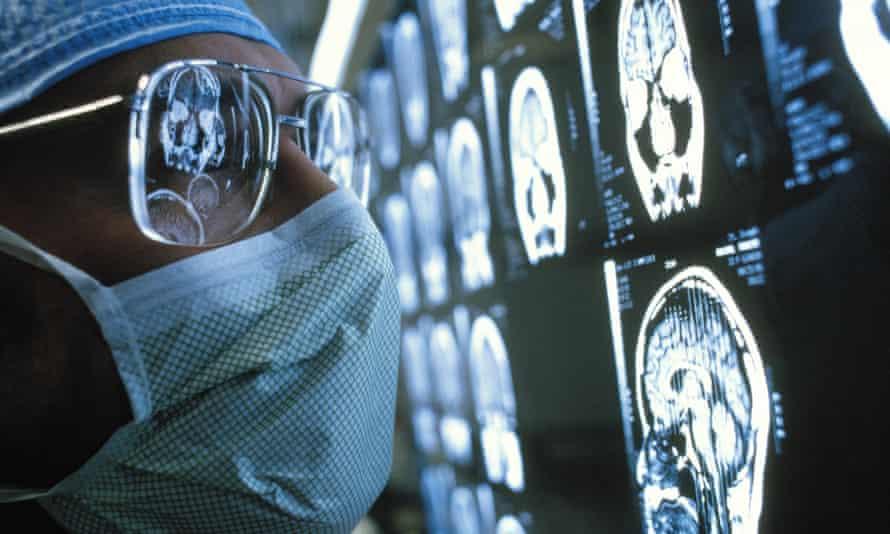 Surgeon examining MRI (Magnetic Resonance Imaging) scans of brain