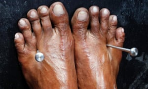Two five-inch stainless steel nails pierce through the feet of a penitent  in San Fernando, Philippines.