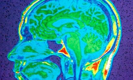MRI scan of brain, close-up