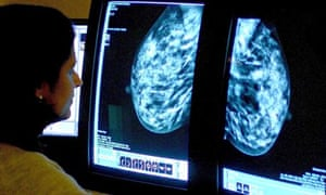 Watchdog blocks breast cancer drug