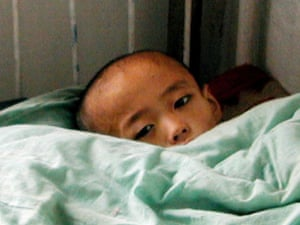 A 14-year-old North Korean boy suffering from malnutrition lies in a bed at Chongjin city peadiatric hospital.