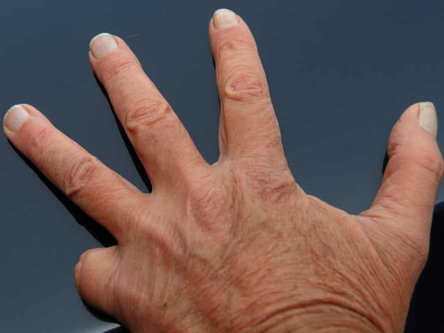 Preston - Nick's missing finger