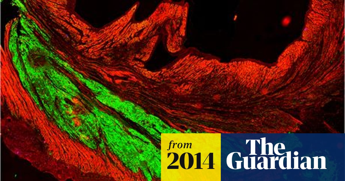 Stem cell treatment repairs damaged hearts in monkeys