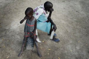 Leer, Unity State, South Sudan: a mother and her child waiting at a burned out hospital for malaria-treatment.