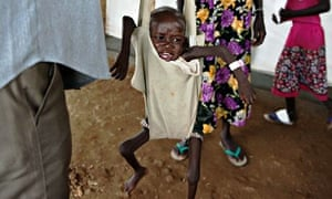A South Sudanese boy suffering from malnutrition is weighed at an emergency aid clinic