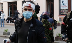 An injured pro-Russian activist looks on during clashes with supporters of the Kiev government in the streets of Odessa May 2, 2014.