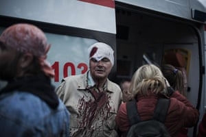 20 Photos: A pro-Ukrainian man after being beaten by pro-Russia activists in Donetsk