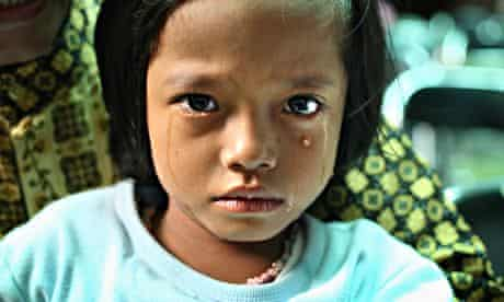 A young girl cries after being circumcised in Bandung, Indonesia on April 23, 2006.