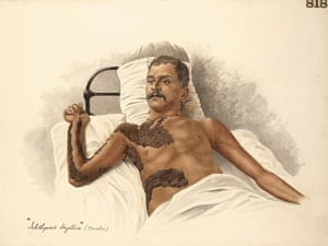 This watercolour, made by the Indian artist Behari Lal Das in the Medical College of Calcutta in 1906, depicts an unusually extensive case of ichthyosis hystrix in a male patient.