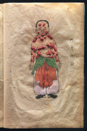 Hand-drawn and textured pages from a rare, possibly unique, Japanese treatise on smallpox - The Essentials of Smallpox (Toshin seiyo) written in the late seventeeth or early eighteenth century by the Japanese doctor Kanda Gensen.