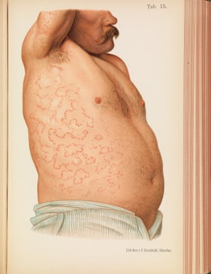 A male patient with erythema covering his abdomen and armpit.
