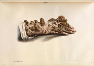 Tubercular leprosy (or ichthyosis) of the hand.