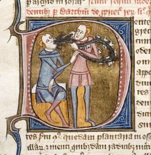 Pulling medaeival teeth - A dentist with silver forceps and a necklace of large teeth, taken from the  Omne Bonum published 14th Century
