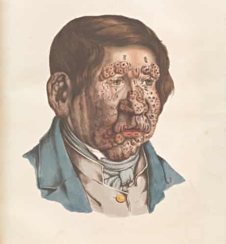 The Sick Rose - 13-year-old boy with severe leprosy