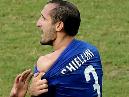 Giorgio Chiellini displays his shoulder showing apparent teeth marks after the biting incident.
