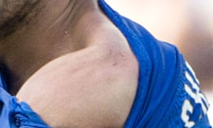 Italy's Giorgio Chiellini shows the bite mark by Luis Suarez of Uruguay during the 2014 World Cup