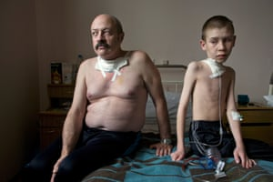 The Long Shadow of Chernobyl :  At the Thyroid Center in Minsk, surgery is performed on a daily basis. Amongst the patients in room #4 was Dima Bogdanovich, 13, who had just undergone his first surgery for thyroid cancer, and liquidator, Oleg Shapiro, 54.