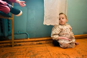 The Long Shadow of Chernobyl: Despite scientific dispute over the cause of physical malformations, many homes in Belarus receive support from Chernobyl aid programs funded by various international aid organizations around the world.