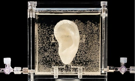Vincent van Gogh's ear replica on display at German museum