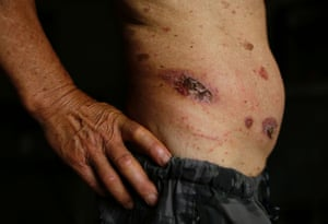 Skin ulcers are seen on 69-year-old Gong Zhaoyuan's torso in Heshan village, in Shimen county, central China's Hunan Province