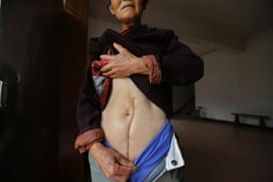 Wen Jin'e, 65, shows a scar, the legacy of an operation to treat cervical cancer, in Heshan village, in Shimen county, central China's Hunan Province