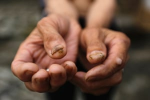 Qin Zhengyu, 78, who suffers from skin cancer, shows tumours on her fingers, at Heshan village, in Shimen county, central China's Hunan Province,