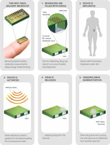 Remote birth control … How the micro-dispensing chip works.