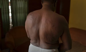 Refugee Adel Rahim from Khartoum, Sudan shows the scars he gained from 27 months in prison after being detained as a political disident