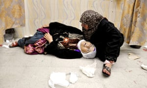 A Palestinian woman lies at a hospital in the northern Gaza  Israel-Gaza conflict, Gaza Strip, Palestinian Territories - 24 Jul 2014