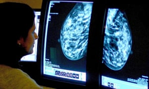 New single-dose radiotherapy could transform breast cancer treatment
