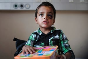 Marwan Hassanein, 4, receives a present for the Eid al-Fitr holiday, at the Shifa hospital in Gaza City, where he is hospitalized, Monday, July 28, 2014. Marwan was injured in head and eyes by shrapnel while fleeing with his family on July 20 during Israeli shelling in the Shijaiyah neighborhood.