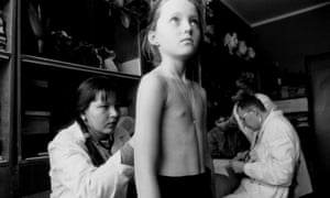 A school child has a medical examination in the Gomel region of Belarus, which was contaminated by the Chernobyl nuclear accident.