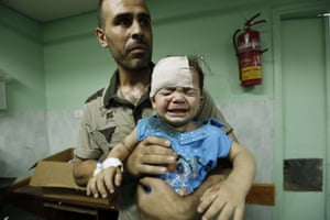 A Palestinian child, wounded in an Israeli strike