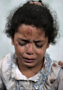 A Palestinian girl 220 cries while receiving treatment for her injuries caused by an Israeli strike.