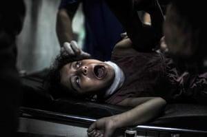 20 photos: An injured Palestinian child
