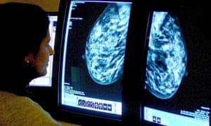 Breast cancer mammogram