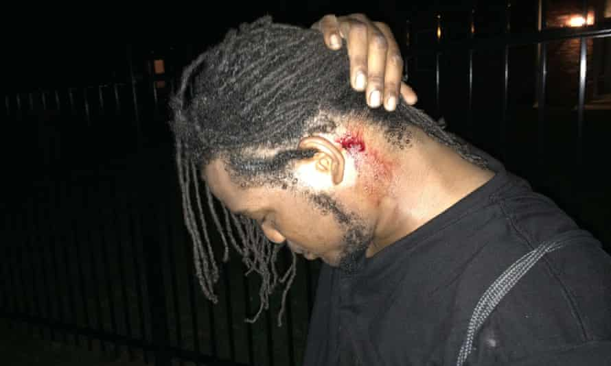 Protester with projectile injury in Ferguson, Missouri