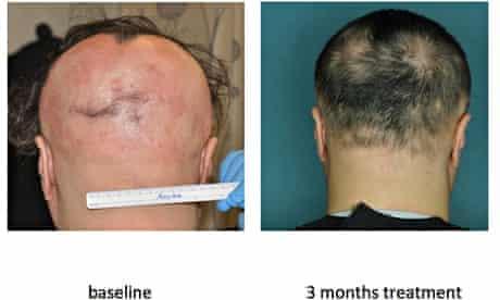 Baldness drug tested