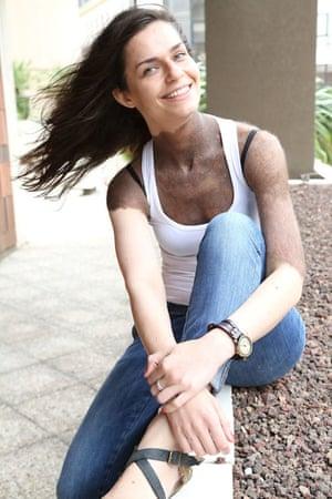 Aga, a girl with CMN