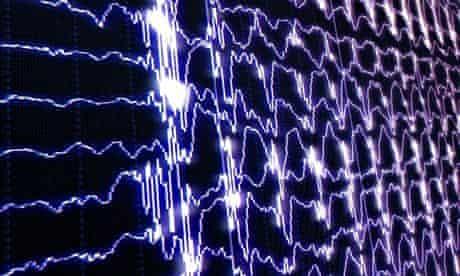 brain waves scanner screen