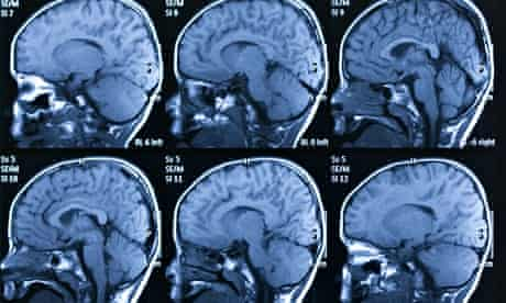 The TMS treatment 'has tremendous potential for treating memory disorders'.