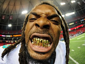 Louis Delmas of the Miami Dolphins poses for a photo after a preseason game
