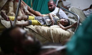 An injured girl lies on a bed at a makeshift hospital in the besieged rebel bastion of Douma, northeast of the Syrian capital Damascus.