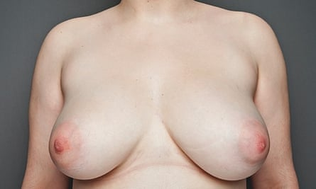 breasts: 21-year-old