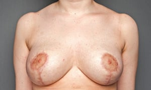 breasts: 19-year-old