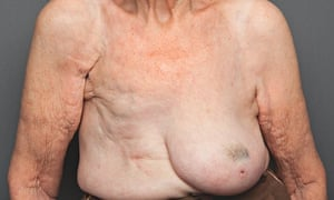 breasts: 101-year-old